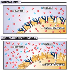 Diagram Of Normal vs. Insulin Resistant Cell