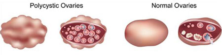 Illustration Of Normal vs. Polycystic Ovaries