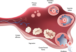 Polycystic Ovary Illustration