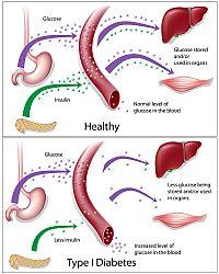 Halthy vs. Type 1 Diabetes Diagram