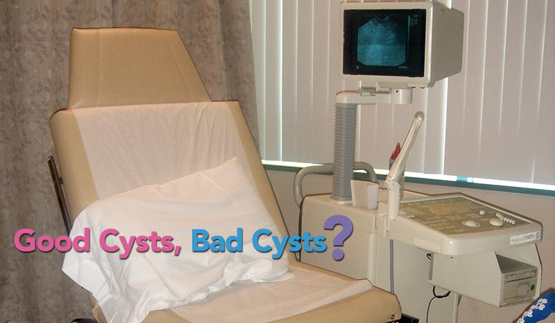 What An Ultrasound Does (And Doesn't) Tell You About Ovarian Cysts