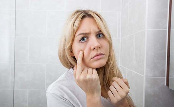PCOS and Acne: Is DHT causing your breakouts?