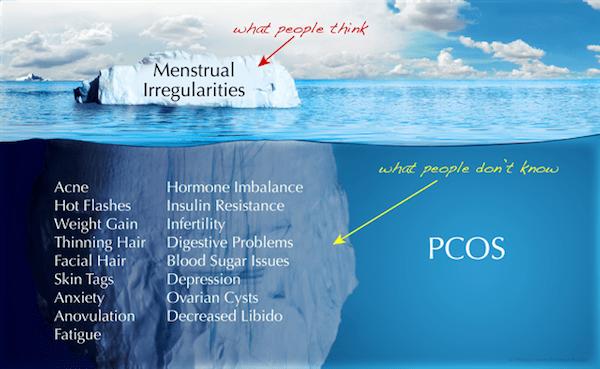 PCOS MenstruaI Irregularities Iceberg