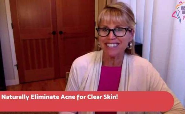 [Tuesday Tip] Naturally Eliminate Acne